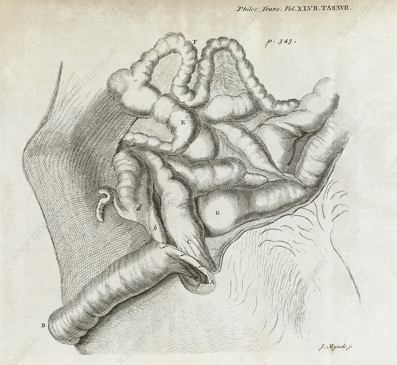 Fistula and hernia, 18th century