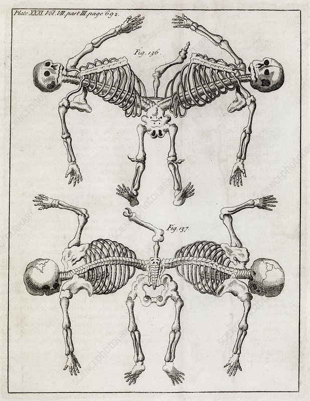 Conjoined twin skeletons, 18th century