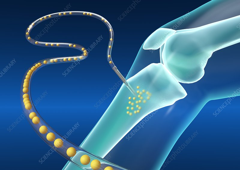 Intraosseous infusion, artwork