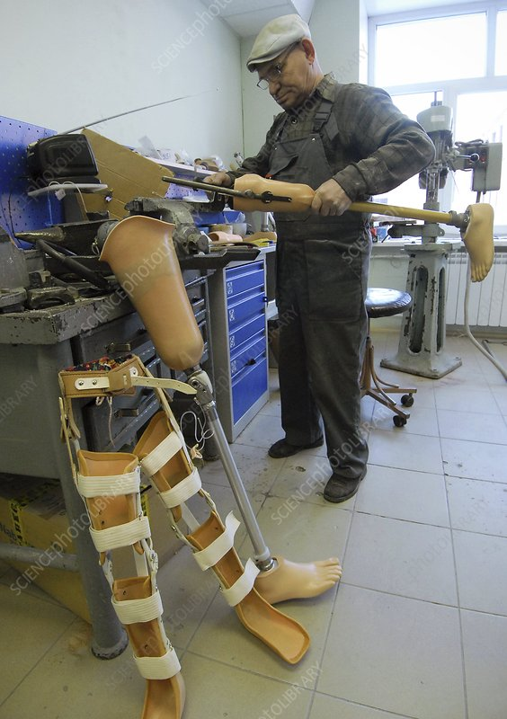 Prosthetic appliance production, Russia