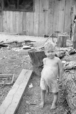 Child with rickets, USA, 1935