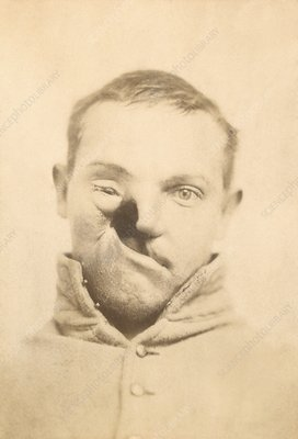 Mercury poisoning deformity, 1860s
