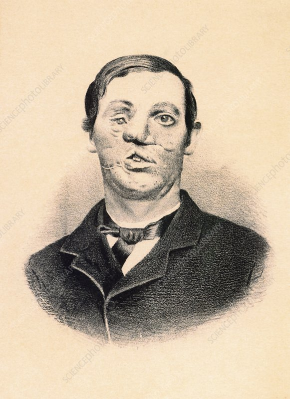 Early reconstructive surgery, 1860s