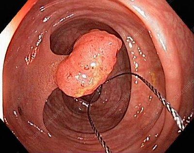 Tubular polyp in the colon