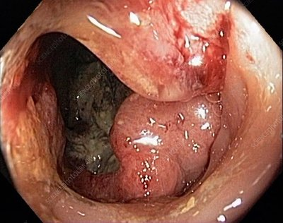 Rectal cancer, colonoscopic view