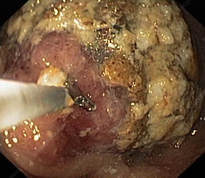 Food retention from gastric cancer