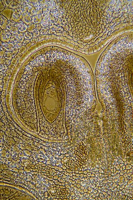 Lily flower ovary, light micrograph