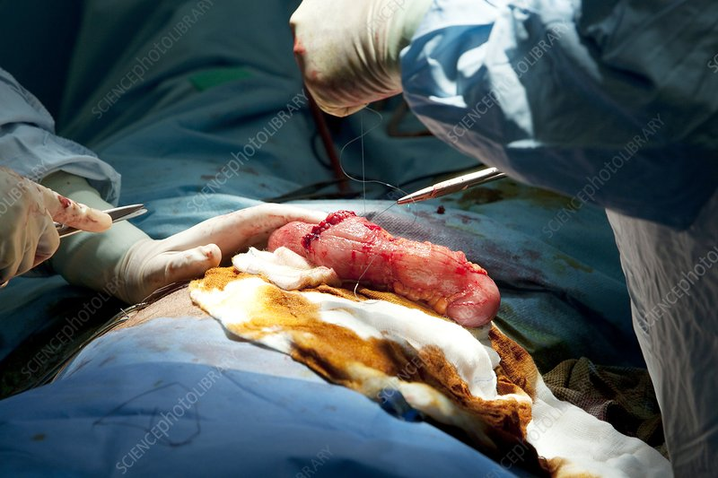 Gall bladder removal surgery