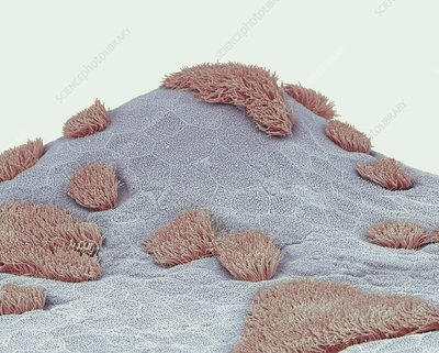 Nasal epithelium, SEM