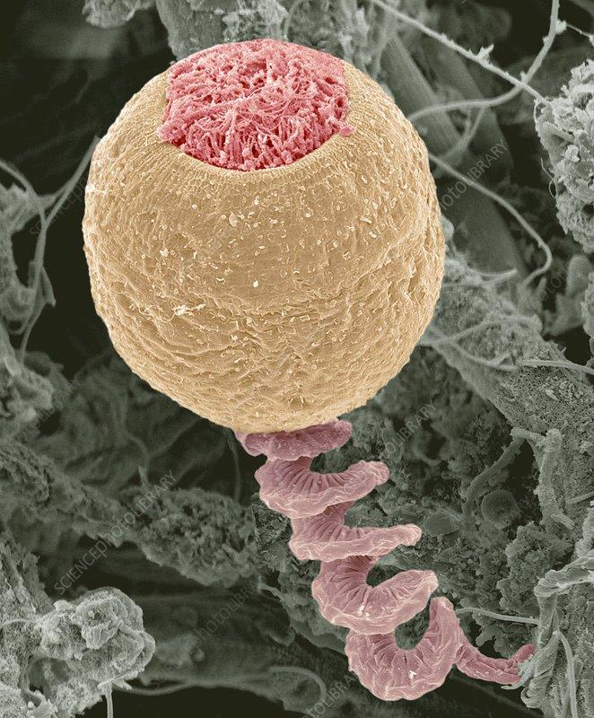 Vorticella protozoan, SEM
