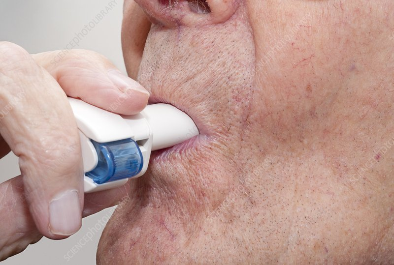 Indacaterol inhaler use for COPD relief