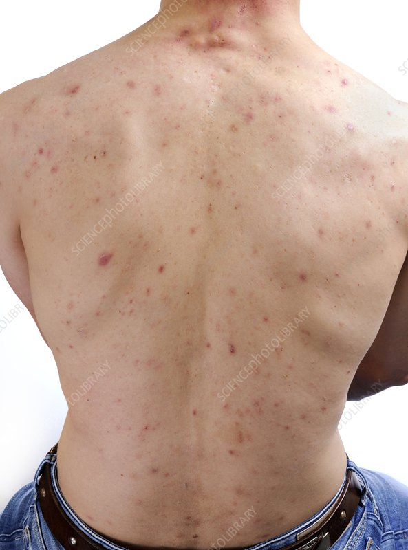 Acne vulgaris on the back