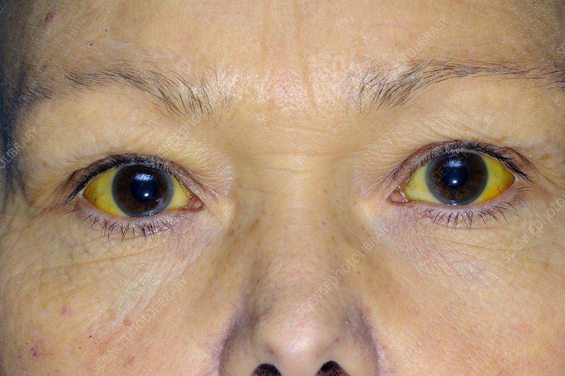Jaundice from alcoholic liver disease - Stock Image C011 ...  Jaundice from a...