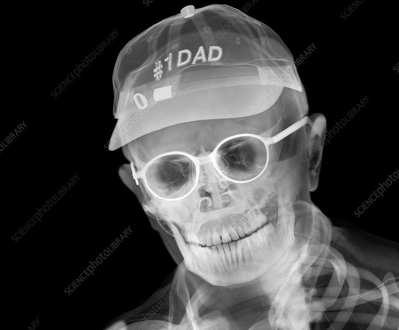Father wearing a baseball cap, X-ray