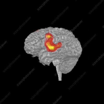 Brain activity during speech