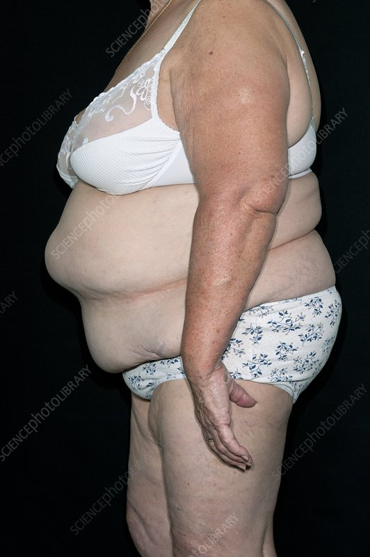 Obese woman in her underwear