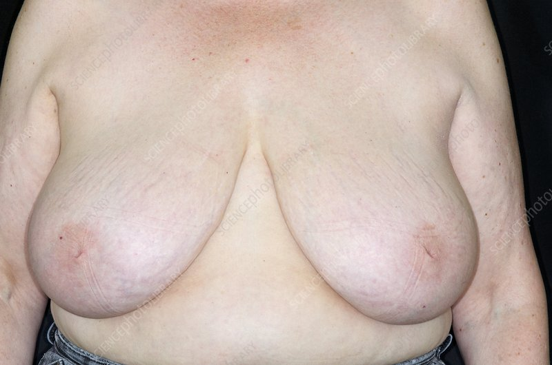 Woman with inverted nipples