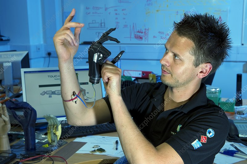 i-LIMB Pulse bionic hand research