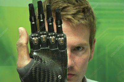 i-LIMB digits prosthetic fingers