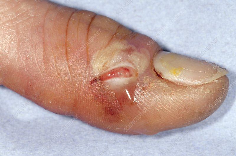 Drained abscess on the thumb