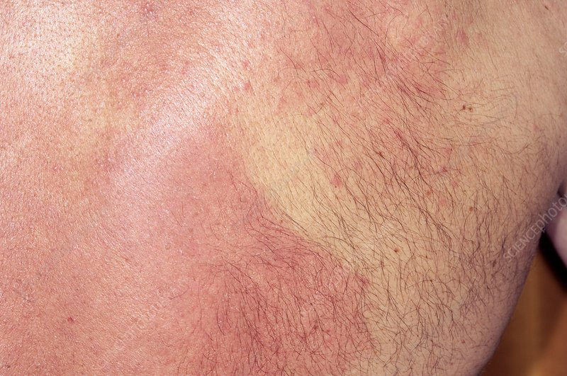Allergic skin reaction to heart drug