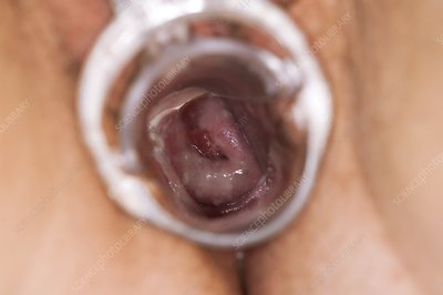 Thrush infection of the cervix