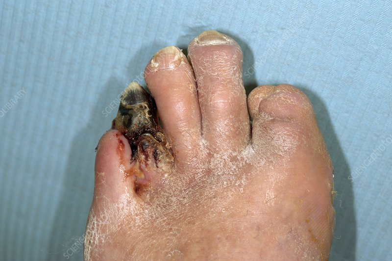 Gangrenous toe in a diabetic