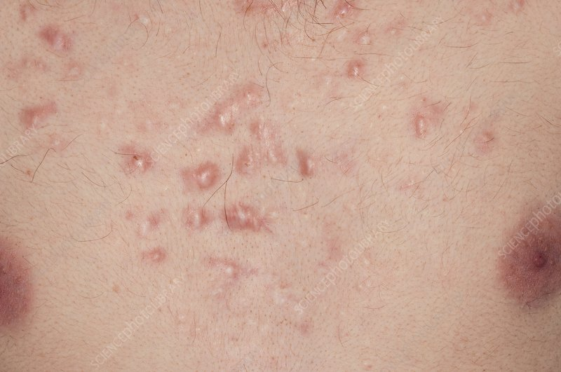 Keloid scarring from acne