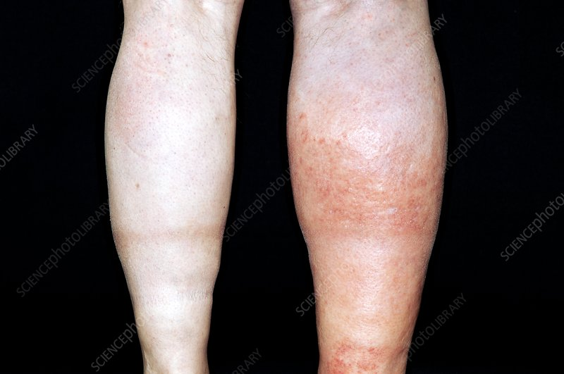 Deep vein thrombosis in the leg
