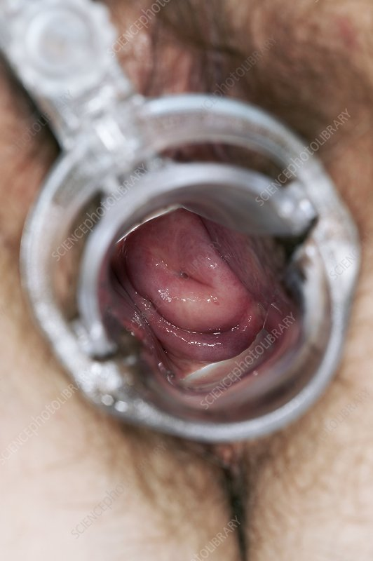 Speculum view of a normal cervix