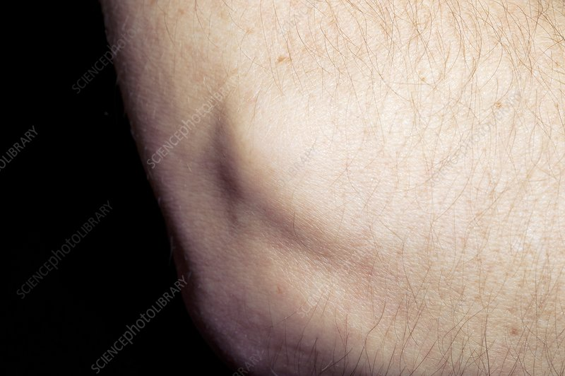 Tennis elbow swelling
