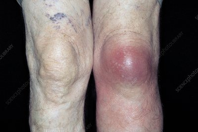 Bursitis of the knee