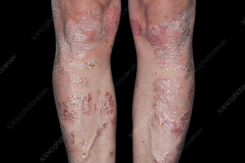 Plaque psoriasis on the legs