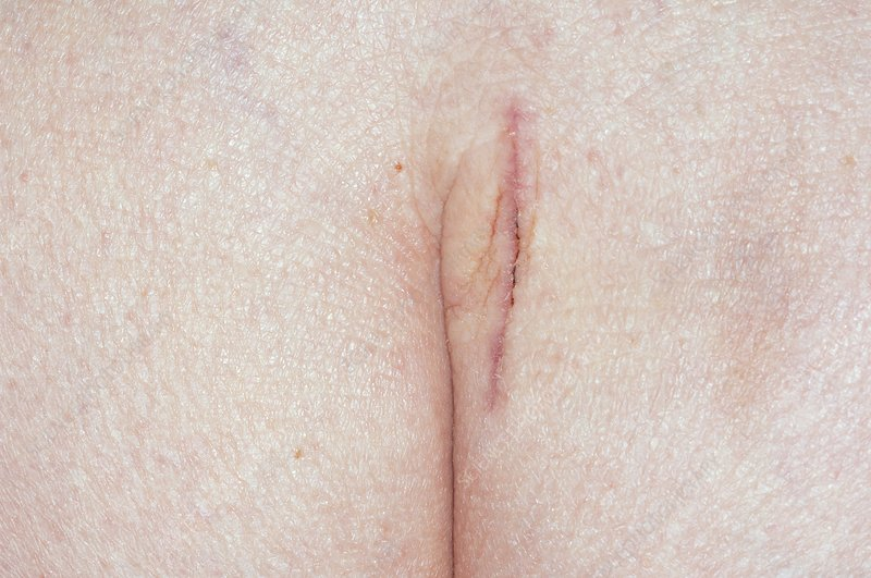 Surgical scar on the buttock