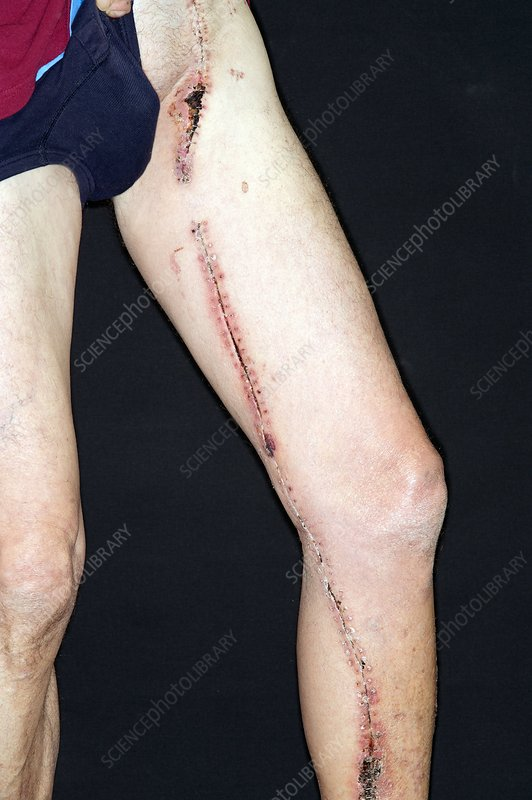 Surgical scar down the leg