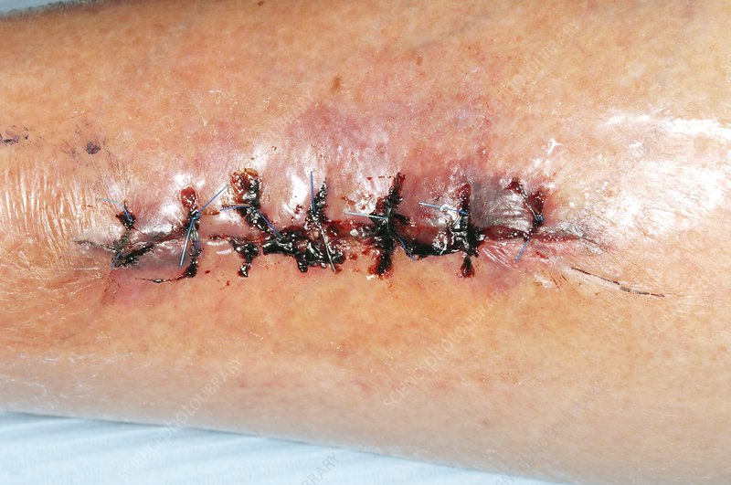 Wound after removal of cancer