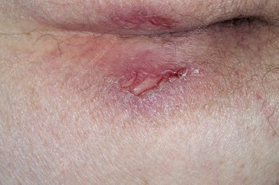 sores on buttocks