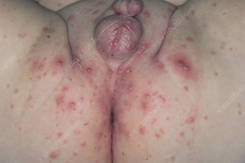 Chickenpox on the buttocks