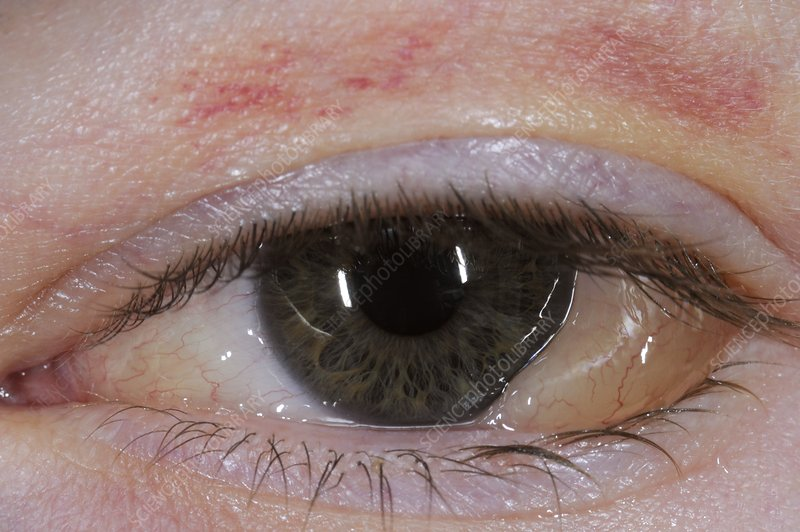 Swelling (chemosis) of the conjunctiva