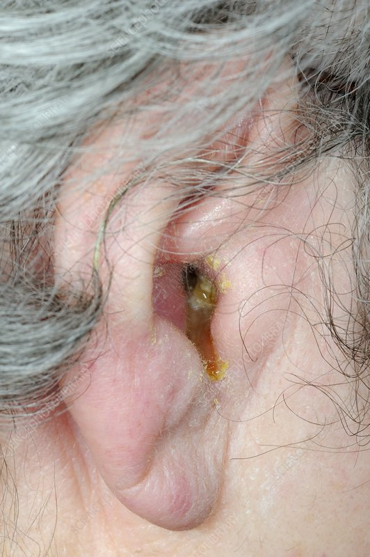 Outer ear infection