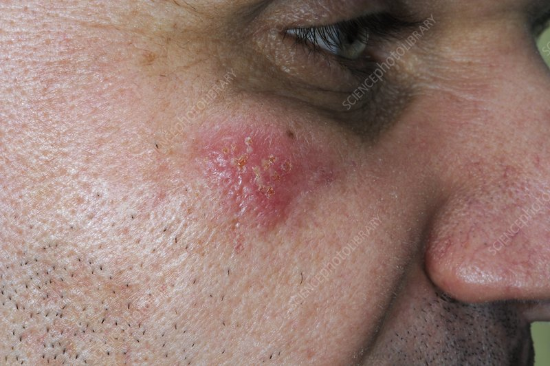 Herpes simplex on the cheek
