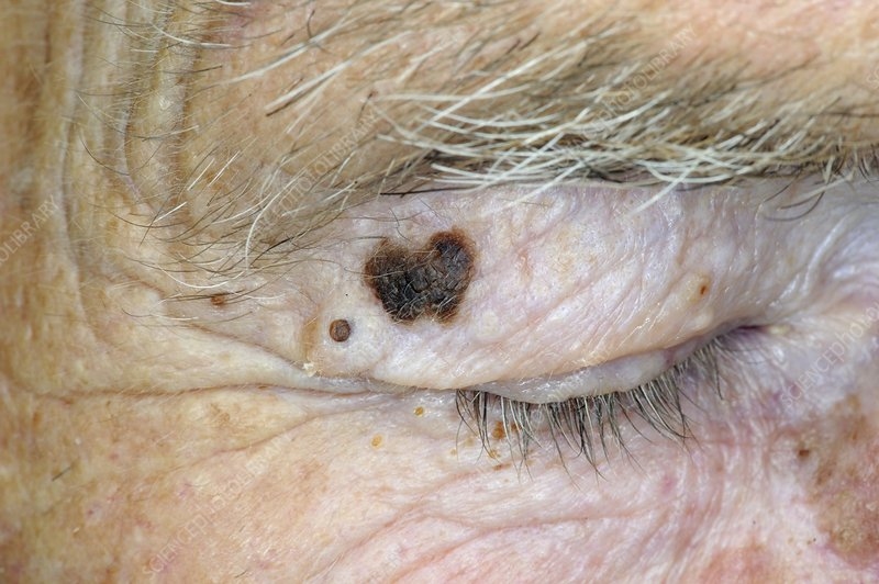 Pigmented hairy naevus on the eyelid