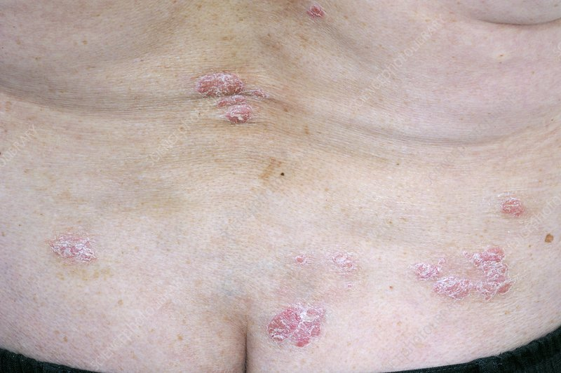 Psoriasis on the lower back