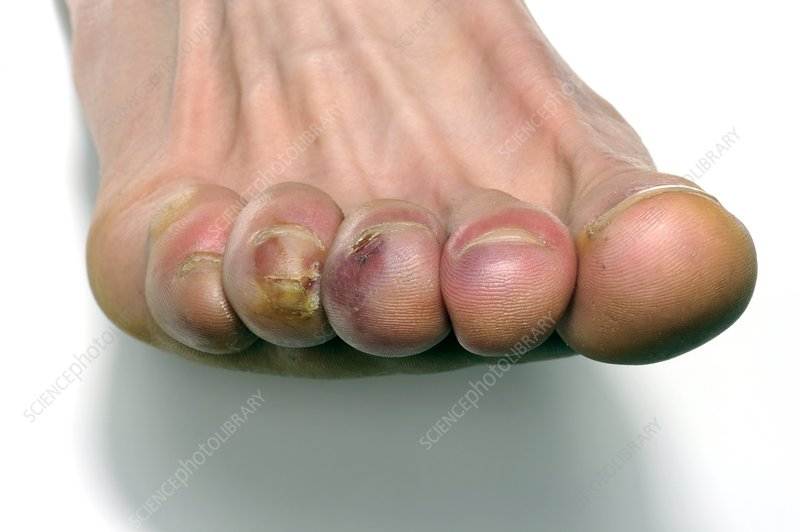 Raynaud's and chilblains of the toes