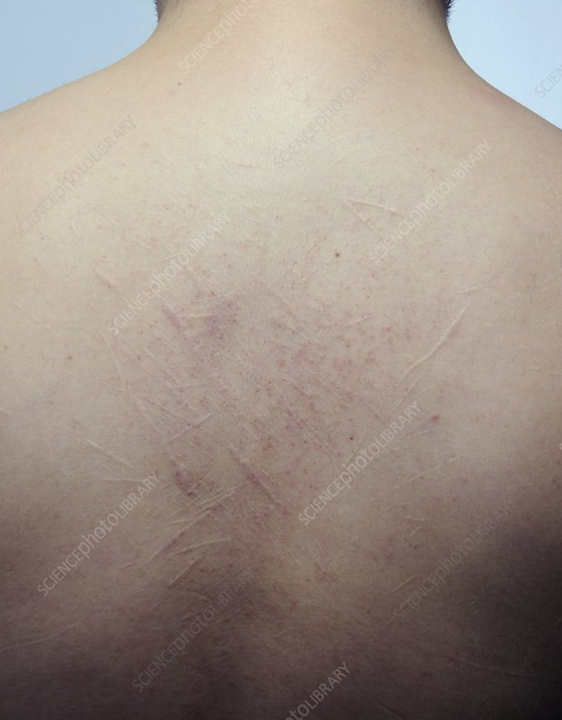 Scars from self harm on the back