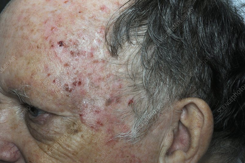 Solar keratosis on the forehead