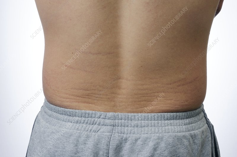 Skin striae (lines) on the back
