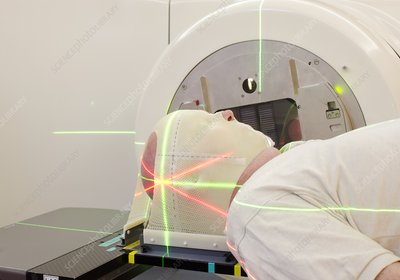 Radiotherapy for brain cancer