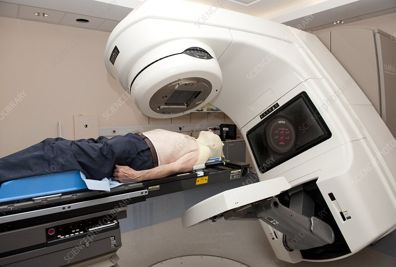 Radiotherapy for throat cancer