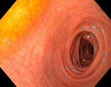 Healthy duodenum